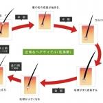 育毛剤の評価と選び方と薄毛のメカニズム